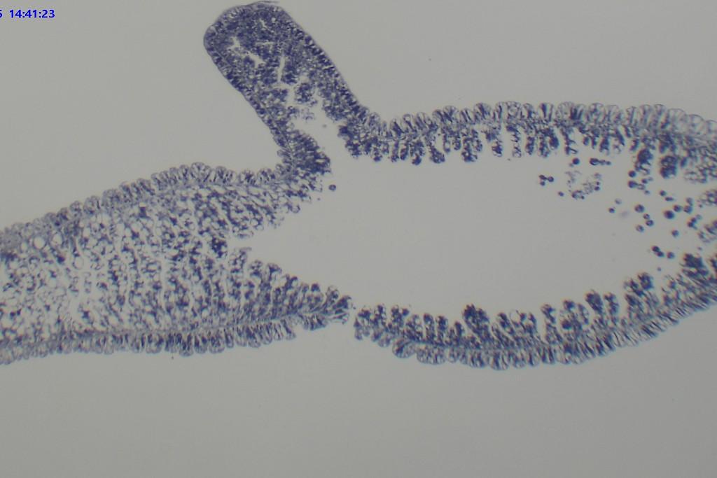 水螅内胚层细胞结构图